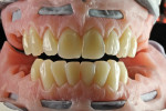 When reconstructing the upper and lower jaw, it is recommended to fabricate one arch at a time to completion.