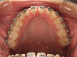 Maxillary arch view during orthodontic treatment.