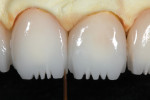 Troughed areas were carefully stained with a mixture of IPS e.max Incisal 2 (violet) and Universal Grey.