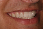 Postoperative natural smile right lateral view.