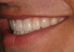 Postoperative natural smile left lateral view.