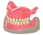 Sample denture CAD model from Exocad's upcoming Denture Design Module.