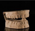 Digitally printed model from a Trios intraoral scan made on a Projet MP 3510.