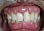 Figure 1  Preoperative photograph of the patient showing generalized gingival enlargement.