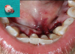 Figure 3  Postoperative photograph of mandibular incisors after excision of growth and suturing. Inset shows the excised growth.