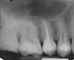 Final radiograph showing the completed root canal therapy and final composite restoration.
