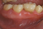 Figure 4  Retained primary dentition, as seen here, is common among those with T21.