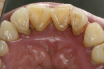 Figure 5  This patient with T21, who initially presented with spontaneous bleeding, shows inflamed palatal tissue.