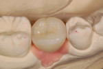 Figure 7 Restoration with ceramic insert in place on laboratory model. Note how well it blends in with the entire occlusal surface.