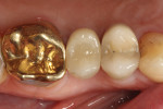 Occlusal view of the hybrid abutment restoration after sealing of the access hole.