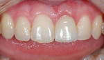 Implant restoration on tooth No. 9 after seating. Photography courtesy Dr. J. Camp