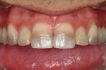 This patient presented for treatment wanting to change the appearance of his front teeth, which were severely discolored. The treatment plan comprised 10 veneers on the maxilla and 6 mandibular anterior veneers. The preparations were adapted to mask the horizon- tal banding. Clinical dentistry and photography courtesy Dr. J. Files.