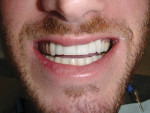 Figure 3 The patient desired a longer, fuller smile with a normal overbite.