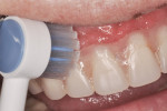 Figure 3 The Waterpik Ultra Water Flosser Toothbrush Tip may be used to remove bulk debris from the prosthesis.