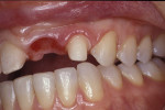 Figure 19 A long-term provisionalization can create ovoid pontic form and create gingival health if adapted well.