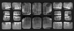 Figure 3  Pretreatment full-mouth radiographs showing the apical pathology on teeth Nos. 2 and 15, mesial bony defect on tooth No. 15, and the condition and size of patient's pre-existing restorations.