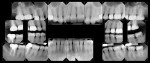 Figure 9  Final treatment full-mouth radiographs showing apical healing of the lesions on teeth Nos. 2 and 15 as well as the fit of the final restorations.