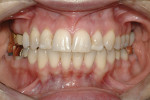 Figure 12  Post-orthodontic photograph shows coronal gingival level and bony exostosis on the buccal of tooth No. 3.