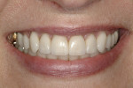 Figure 15  Posttreatment smile shows improved gingival levels and cosmetic improvement of the teeth.