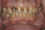 Figure 6  Refinement of teeth preparations after removal of previous metal-ceramic crowns.
