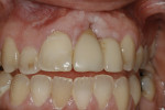Figure 10  (Case 4) Intraoral view of deformity.