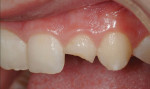 Figure 4 The maxillary lateral incisor is the most common anterior esthetic restoration to fracture when the occlusal scheme is not perfected.