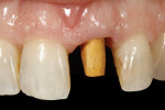 Figure 30  The gold-plated abutment was seated intraorally, ready for cementation of the definitive restoration. Note that gold plating an alloy abutment imparts a warm hue to the gingival tissues.
