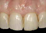 Figure 33  The definitive metal-ceramic restoration seated intraorally, showing good color matching and periodontal health. No xenograft particles were visible through the peri-implant soft tissues.
