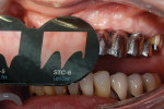 Figure 14  After trying in the bridge, the tissue color was checked using the Chairside Shade Guide. The color was determined to be between light pink and light coral. The technician mixed the gingiva color with translucency to achieve the correct ef