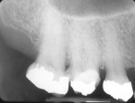 Figure 15 A patient presented with a vertically fractured first molar. Note the periapical lesion that was present.