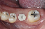 Figure 1:  Inclusive custom healing abutment in place.