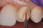 Figure 9 A pink opaquer was painted over the metal substructure of the implant restoration.