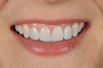 Figure 10 The resulting nanohybrid composite restorations demonstrated polychromicity and contributed to a natural smile appearance.