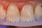 "Figure 6 To allow the more opacious composite to ""break up"" areas of translucency in the incisal edge and better duplicate nature, the incisal edge was cut back."