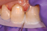 Figure 5 An opacious OB shade of nanohybrid composite was applied to the incisal edges of teeth Nos. 8 and 9.