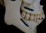 Figure 1  Normal attachments of buccinator muscle on the maxilla and mandible.