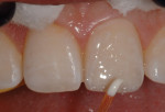 Figure 15 A white tint was applied to the dentin replacement layer.