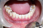 Figure 6  Reduced gingival inflammation 2 weeks after corticosteroid and retinoid therapy.