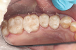 Figure 5 Try-in of milled restorations.