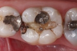 Figure 2 Preparation of tooth No. 30 after the amalgam restoration was removed.