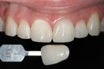 Figure 14 Three-week posttreatment results without supplemental whitening show no perceptable relapse.