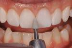Figure 13 A fine polishing point was used to remove any interproximal scratches and smooth the final composite restorations.
