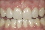 Figure 24  The final esthetic outcome of porcelain veneers placed on teeth Nos. 6 through 11.