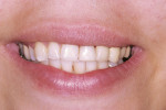 Figure 16  Smile close-up postoperatively on tooth No. 9.
