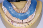 Figure 3  The implant core jig for insertion of implant cores in the patient's mouth.