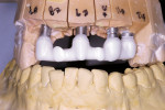 Figure 4  The zirconia bridge framework.