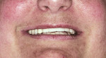 Figure 8  Postoperative smile view.