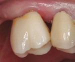 Figure 16  Postoperative view of the first impression-free zirconia-based restoration.