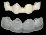 Figure 19  The milled zirconia framework and the plastic full-contour portion of the restoration.