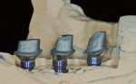 Figure 10 CAD/CAM abutments in place on the Robocast.